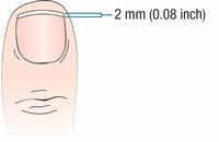 Ideal Fingernail Length in a Perioperative Setting